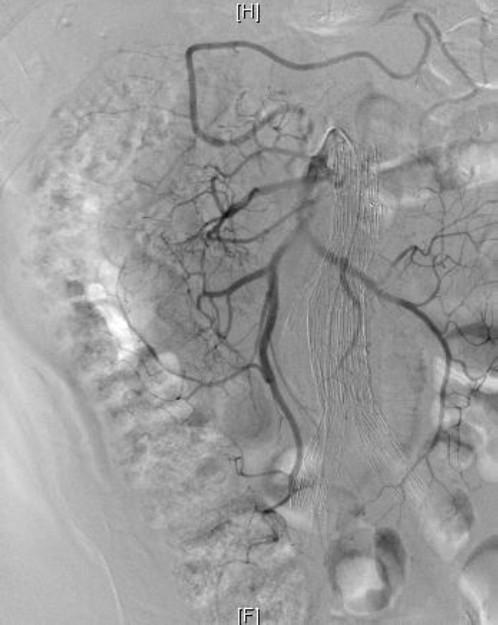 Hypogastric Artery Embolization