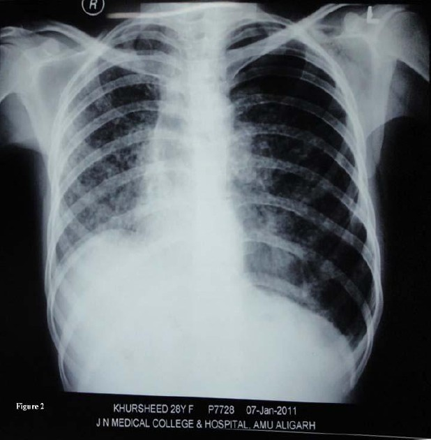 Figure 2: Miliary Tuberculosis with Recurrent left sided Pneumothorax) Chest X-ray postero-anterior view showing a recurrent left sided pneumothorax with miliary mottling