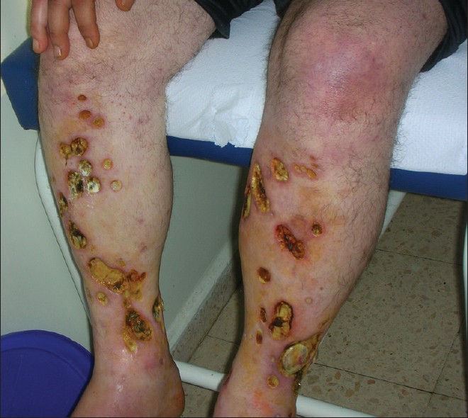 diabetes skin rash photos | Lifescript.com