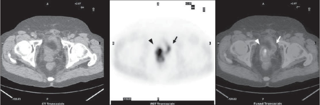 Figure 1: 5-min early acquisition imaging. From left to right: low-dose CT, PET, fused PET/CT axial images of the pelvis showing a prostate cancer relapse in the right side of prostate bed (arrow head) while bladder is substantially empty (arrow)