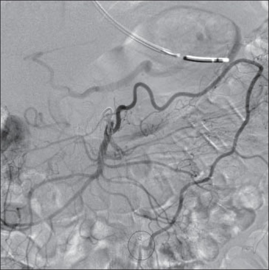 Figure 1: Angiography after catheterization of the middle colic artery revealing hypertrophy of the marginal artery of Drummond. There is opacifi cation of the inferior mesenteric artery whose origin is inaccessible from the aorta (circled) by the presence of a stent-graft placed for abdominal aortic aneurysm repair
