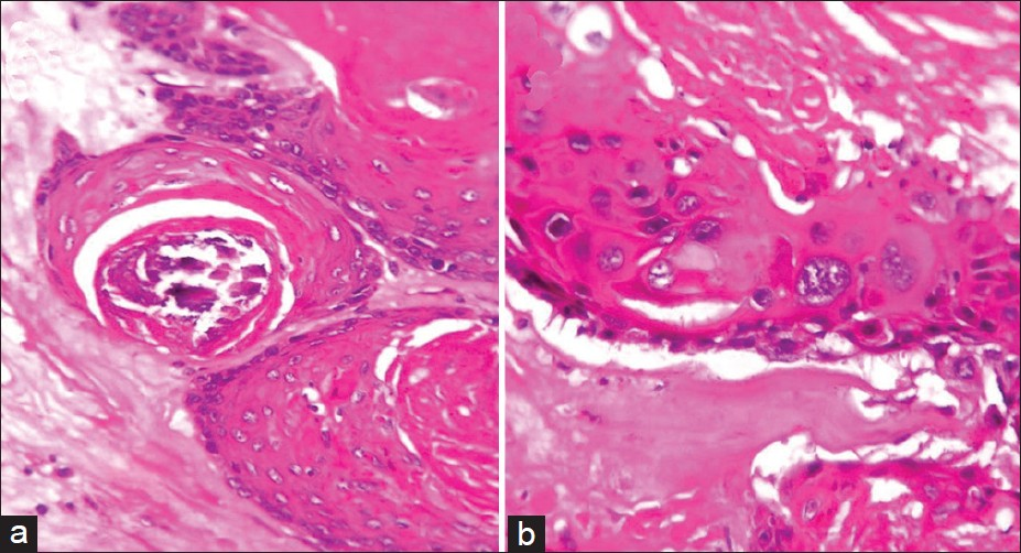 Dystrophic Calcification Histology Dystrophic Calcification