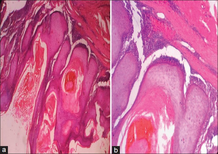 Figure 1: (a) Photomicrograph is showing hyperkeratosis, parakeratosis, acanthosis, and keratin field cyst. There were large bulbous, downward proliferations that compress the collage bundles and push them aside. Dense chronic inflammatory cells were seen in dermis (H and E, ×40). (b) High power view showing well differentiated squamous epithelial cells and intact basement membrane. Atypical features were not shown (H and E, ×400)