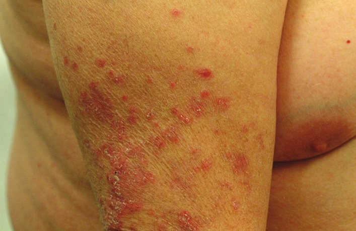 Blotchy Rash and Rash On My Neck - Treato