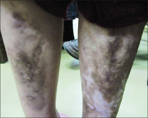 Figure 3: Easy bruising, characteristic brownish discoloration of the skin, especially in exposed areas, such as the shins