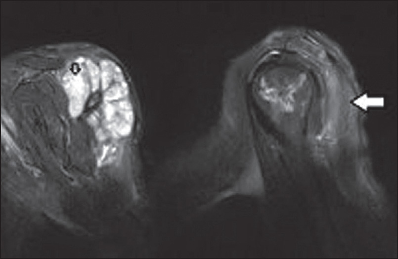 Figure 2: These sagittal T2-weighted images demonstrate high-signal intensity necrotic areas (small arrow) and peritumoral hyperintense edematous regions in the deltoid muscle (large arrow)