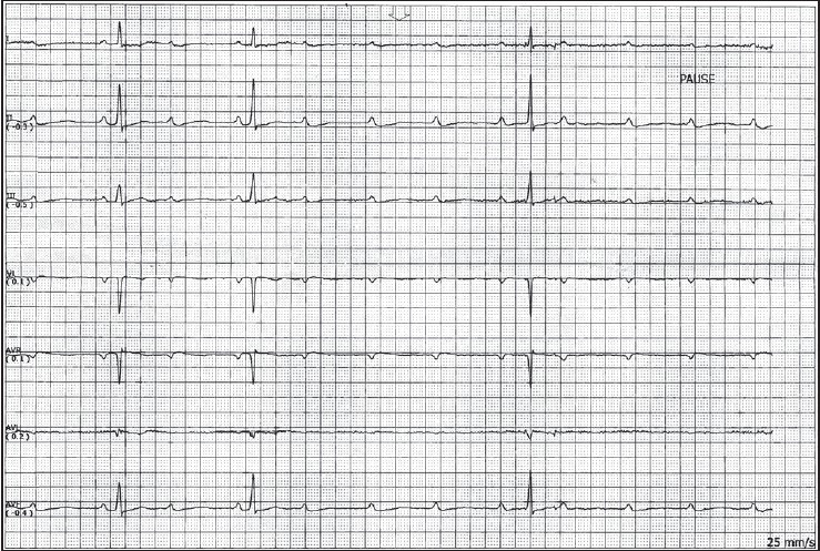 Single-chamber vs dual-chamber pacing for high-grade atrioventricular block