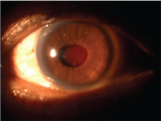 Figure 1: Slit lamp picture of the left eye in diffuse illumination showing endo capsular hematoma