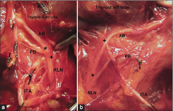 Surgical anatomy of bilateral extralaryngeal bifurcation of the ...