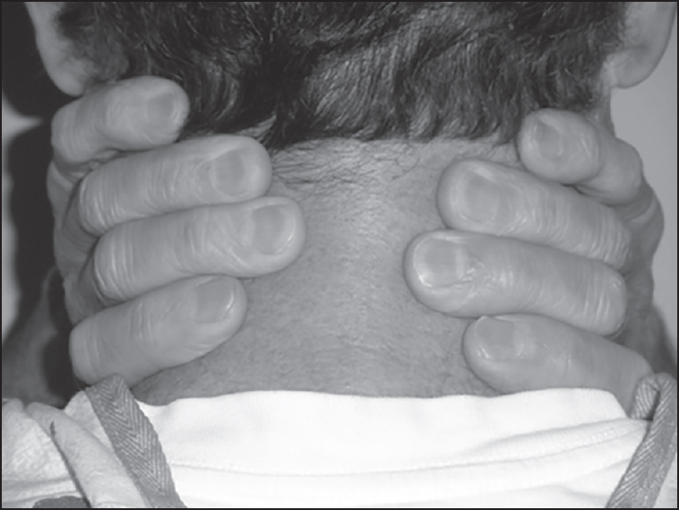 Figure 2: Easy sleep apnea predictor positive is the inability to easily encircle the neck so that the patient's digits meet on the posterior neck