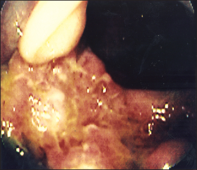 Figure 2: Colonoscopy findings showing acute inflammation of the ascending colon due to tuberculous colitis