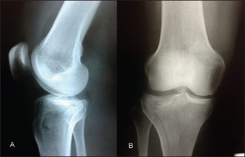 Figure 1: Initial radiological imaging (a) lateral and (b) PA view demonstrating the minimal displacement and the difficulty in proper viewing of the fracture