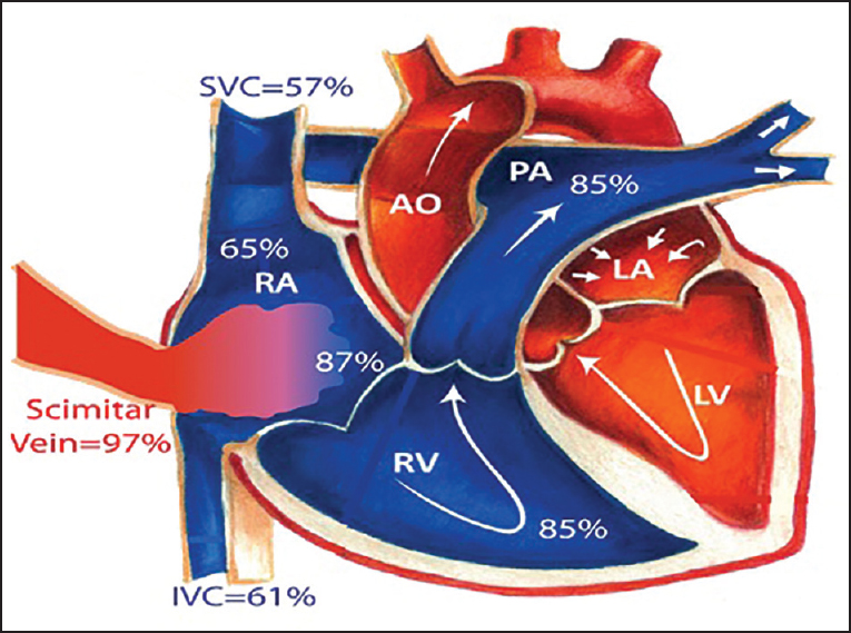 Figure 5: Diagrammatic depiction of oxygen saturation from the right heart catheterization
