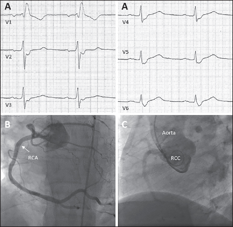 Figure 1: (a) Electrocardiogram (50 mm/s) showing normal sinus rhythm without any ST-segment abnormalities and a complete right bundle branch block. (b) Coronary angiography showing a single coronary artery arising from the right sinus of Valsalva. (c) Aortography in the left anterior oblique view ruled out the presence of any other coronary ostia. RCC: Right coronary cusp. RCA: Right coronary artery