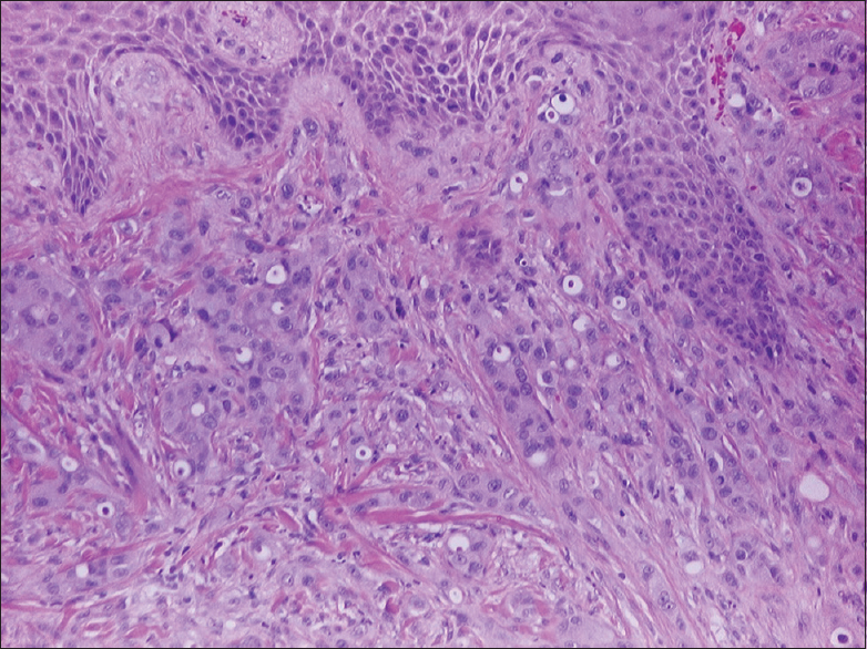 Figure 6: Hematoxylin and eosin stain of the skin with subepidermal adenocarcinoma